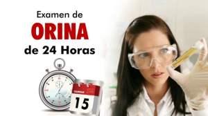 Orina 24H