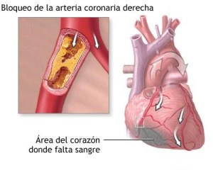 Cardiopatía Diabética