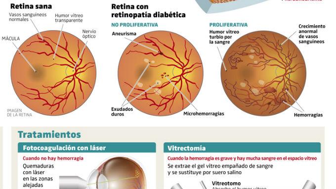 derrame de proteínas en los riñones y la diabetes